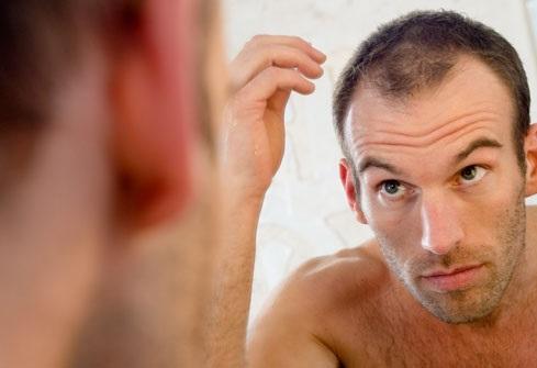 Profolan – tabletki na porost włosów, opinie i efekty!